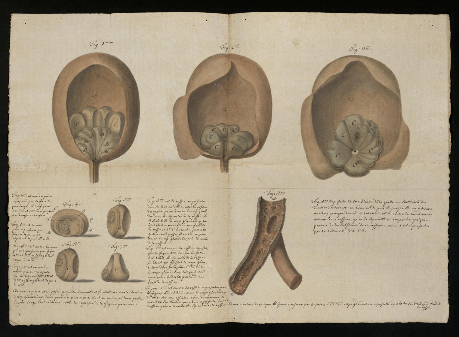Planche anatomique vessie